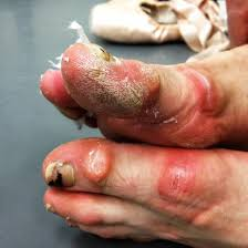 ugly feet 1