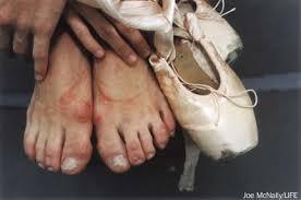 ugly feet 2