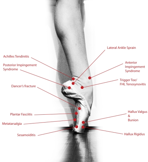 Dance Injury Diagram-The Foot