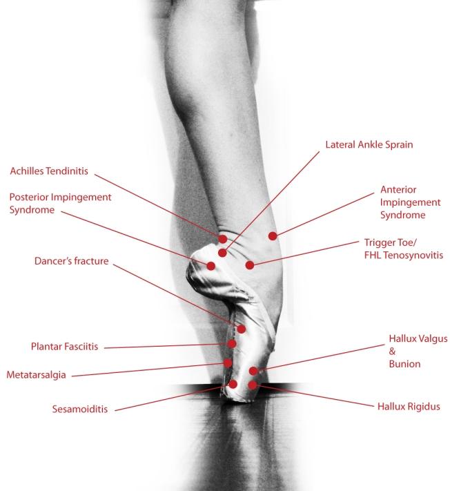 Dance Injury Diagram-The Foot