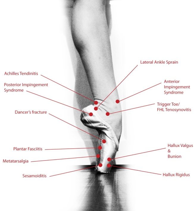 Foot And Ankle Injury Prevention Tips For Dancers