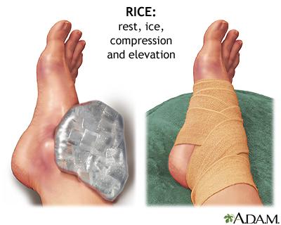 Rest Ice Compression Elevation= PRICE (Precaution)$$$