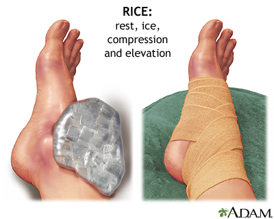 Rest Ice Compression Elevation= PRICE (Precaution)$$$